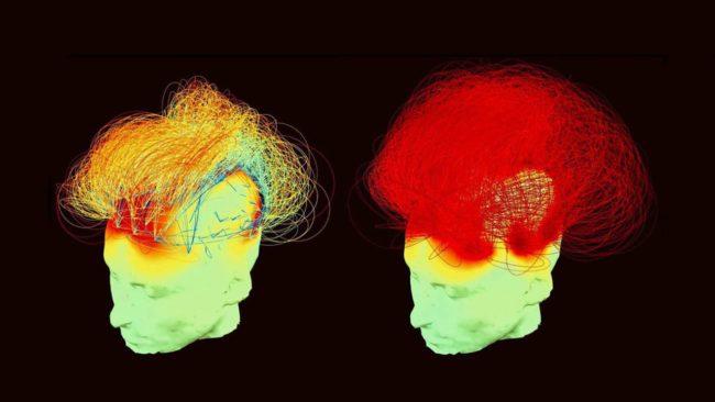 la méditation et ses effets sur le cerveau